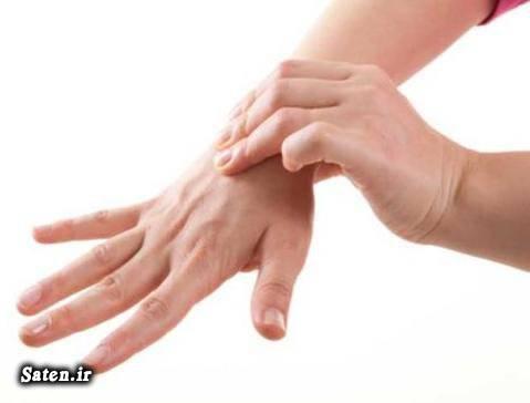 مجله پزشکی متخصص طب فیزیکی خوب علت خواب رفتن دست و پا علت خواب رفتن انگشتان دست درمان خواب رفتن دست و پا