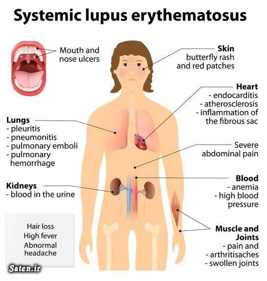 مجله پزشکی درمان بیماری لوپوس تشخیص لوپوس آشنایی با انواع بیماری ها