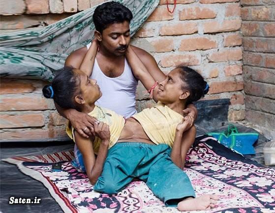 عکس دوقلو دوقلوهای به هم چسبیده ازدواج عجیب ازدواج دوقلوها ازدواج جالب اخبار هند