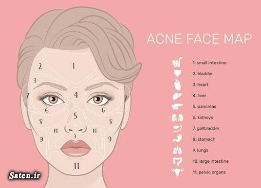 مجله سلامت علت جوش صورت چیست رابطه جوش صورت با کبد درمان جوش گونه درمان جوش صورت درمان جوش چانه درمان جوش پیشانی درمان آکنه جوش صورت نشانه چیست انواع جوش صورت