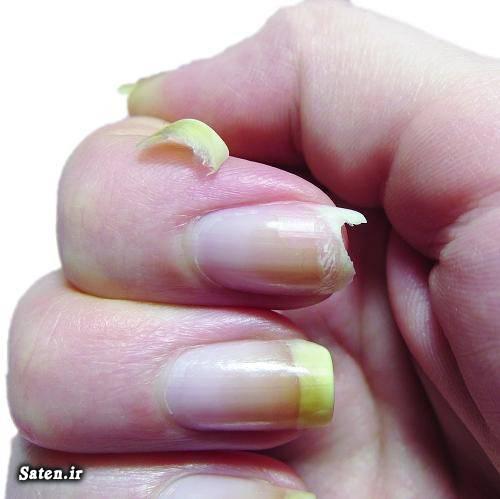 ناخن های زیبا و بلند مشکلات ناخن علت نرمی ناخن چیست طب سنتی زیبایی زنان راز زیبایی و جوانی درمان شکنندگی ناخن در طب سنتی چگونه ناخن سفید داشته باشیم
