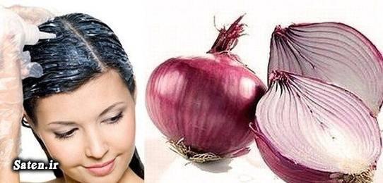 متخصص پوست و مو کچلی سر در زنان رویش مجدد مو با طب سنتی درمان گیاهی کچلی سر درمان کچلی خوردن اب پیاز خواص پیاز تقویت پیاز موی سر تحریک پیاز مو آب پیاز برای رشد مو