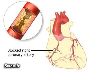 علت مرگ و میر در ایران پیشگیری بیماریهای قلبی عروقی بیماریهای قلبی عروقی ایست قلبی آناتومی عروق کرونر آناتومی