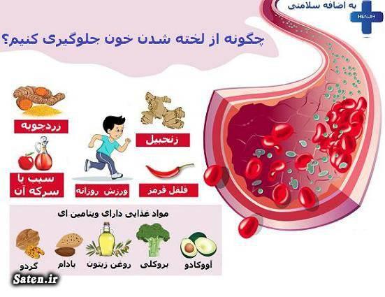 مضرات تماشای تلویزیونی مضرات تلویزیون برای کودکان مجله سلامت لخته شدن خون چیست علت لخته شدن خون ترومبوز آمبولی پیشگیری از ترومبوآمبولی