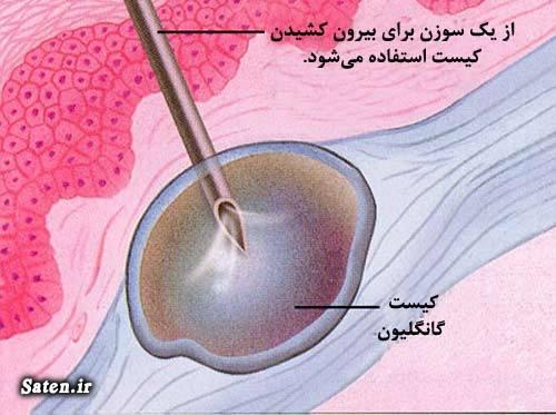 مجله پزشکی عمل کیست مچ دست درمان ورم مچ دست درمان گانگلیون در طب سنتی جراحی گانگلیون بهترین متخصص ارتوپد برای درد مچ دست چه باید کرد ارتوپد خوب در تهران