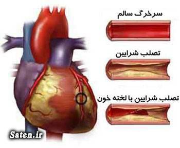 ویتامین d مجله سلامت کمبود ویتامین d داروی گیاهی برای باز كردن عروق جلوگیری از تصلب شرایین پیشگیری از بیماری های قلبی عروقی بیماری های قلبی عروقی اخبار پزشکی