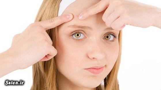 متخصص طب سنتی علت جوش صورت چیست درمان فوری جوش صورت درمان سریع آکنه درمان دارویی آکنه درمان جوش پیشانی جوش صورت نشانه چیست پوست صاف و بدون جوش بهترین رژیم غذایی زیبایی بهترین رژیم غذایی انواع جوش صورت