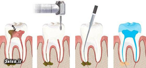 علت درد دندان عصب کشی شده بعد از چند ماه چیست؟