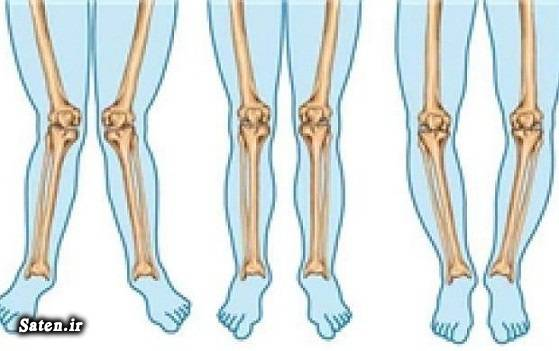 چه زمانی باید پاهای پرانتزی را جراحی کرد؟