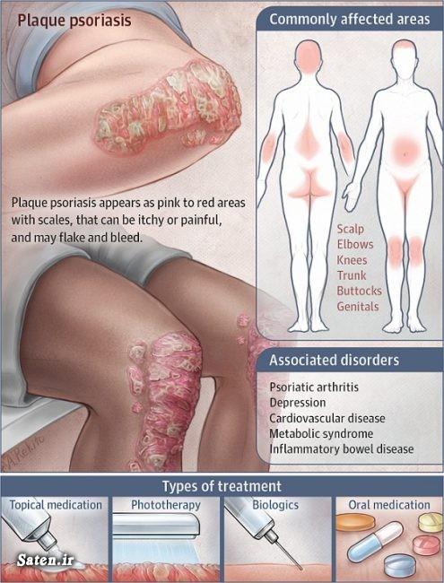 مجله سلامت متخصص پوست و مو درمان بیماری صدف (پسوریازیس) داروهای پسوریازیس بیماری صدف ناخن بیماری پوستی پسوریازیس (صدف) انواع بیماری پوستی با عکس