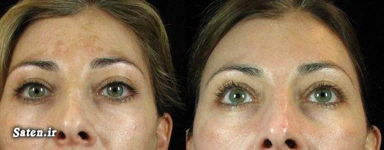 مجله سلامت کرم لایه بردار خوب کرم ضد لک زیبایی صورت خانمها زیباترین صورت درمان ملاسما در طب سنتی درمان قعطی لک ملاسما درمان خانگی بهترین کرم پوست صورت بهترین کرم برای درمان ملاسما