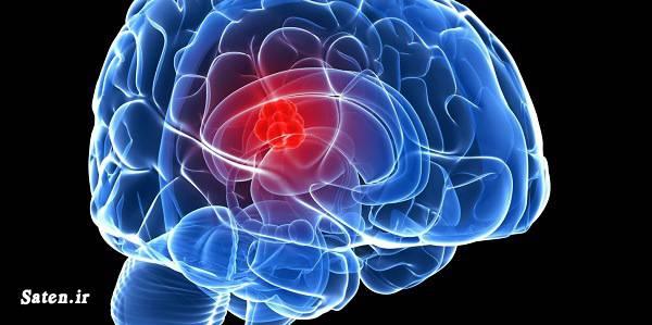متخصص مغز و اعصاب تومور مغزی